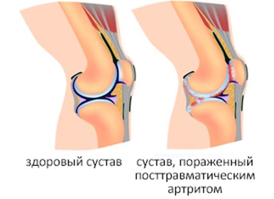 остеоартроз лучезапястных суставов код по мкб