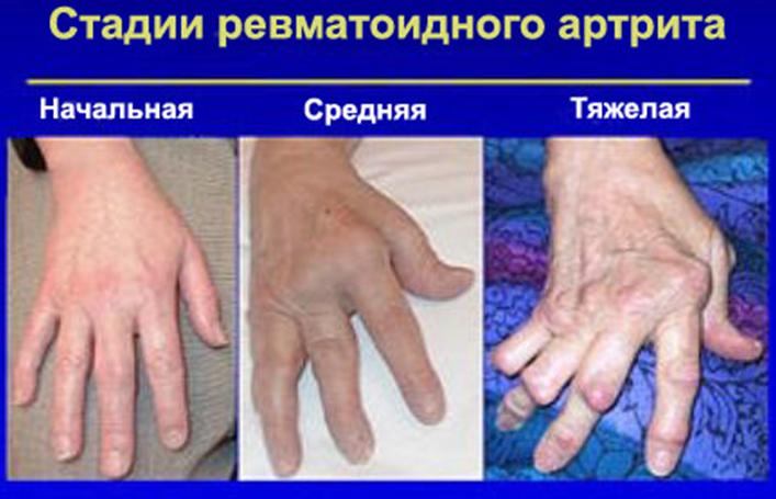 Как и чем лечат ревматоидный артрит в китае